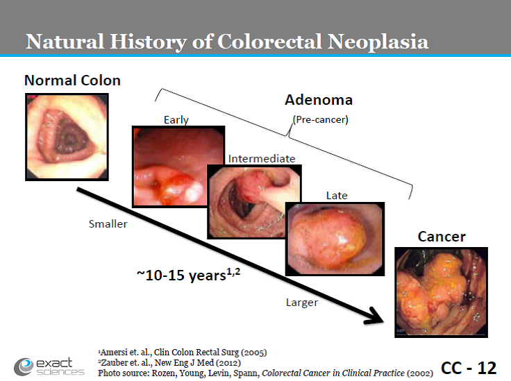 Photos: Natural history of colorectal neoplasia